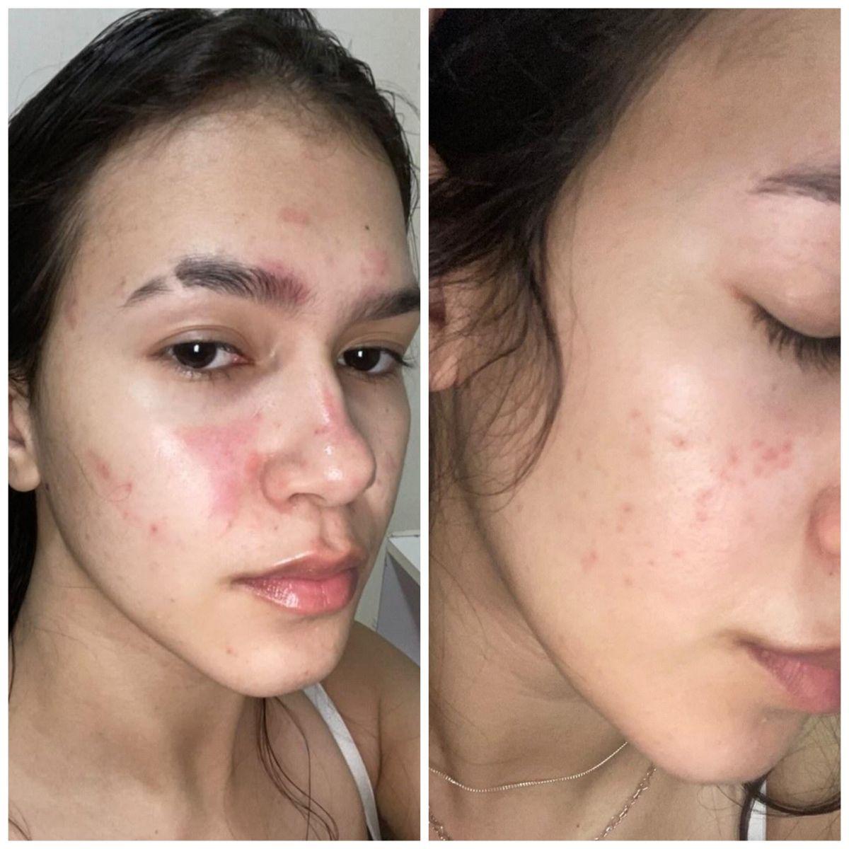 Maria Vitória Rodrigues, 19, estudante, documentou o uso dos cosméticos. Esquerda: Fevereiro de 2021/ Direita: Agosto de 2021