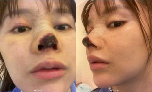 Atriz Gao Liu após procedimento estético