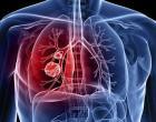 Estudo de coautoria brasileira apresenta opção para prevenção da tuberculose entre pessoas com HIV