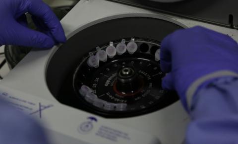 Pesquisadores estão trabalhando na produção de uma vacina contra o novo coronavírus