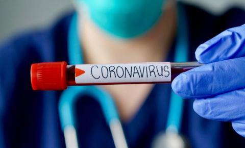 COVID-19: Boletim epidemiológico informa número de casos e óbitos nos estados da região sudeste